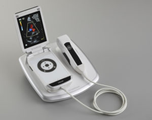 Vscan pocket-sized ultrasound device that may transform the way physicians see their patients
