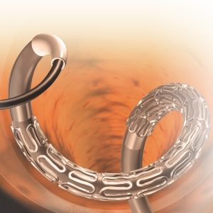 Sahajanand Medical Technologies Stent
