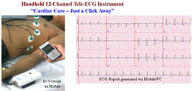 Hand-held ECG Device